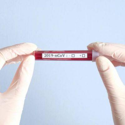 PCR тест