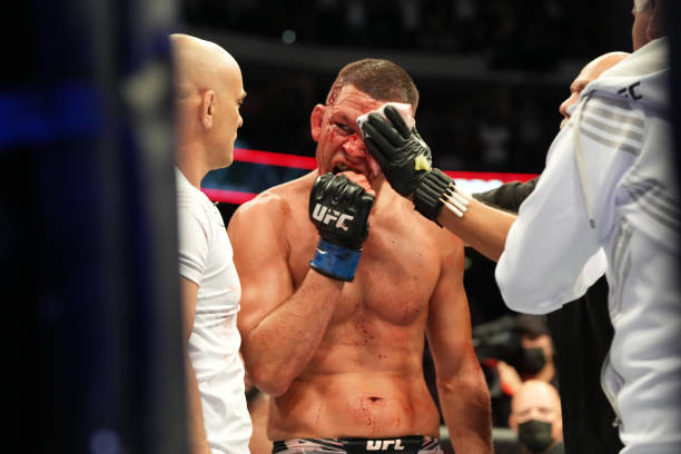 GLENDALE, AZ - JUNE 12: Nate Diaz (blue gloves) receives medical attention during the UFC 263 on June 12, 2021, at Gila River Arena in Glendale, AZ. (Photo by Louis Grasse/PxImages/Icon Sportswire via Getty Images)